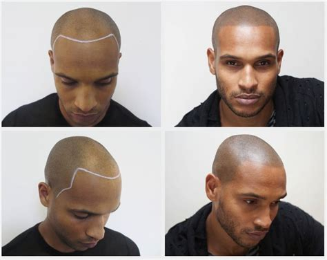 tattoo hair line 58 best n doddn d images on scalp