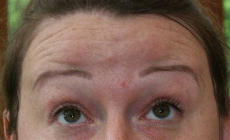 face perfect clinic rotherham  rotherham read  reviews
