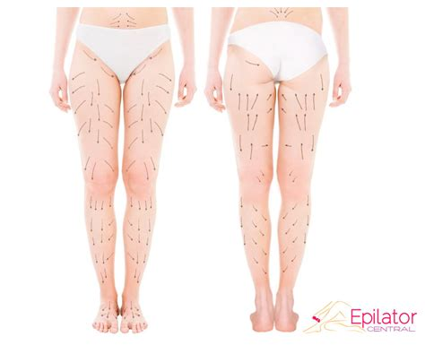 growth on s leg pictorial guide how to properly epilate legs epilator central