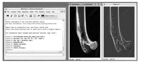 qtoctave tutorial image processing software an overview biomedical image