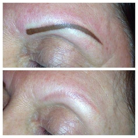 eyebrow tattoo removal before and after 17 best images about tattoos eyebrow on