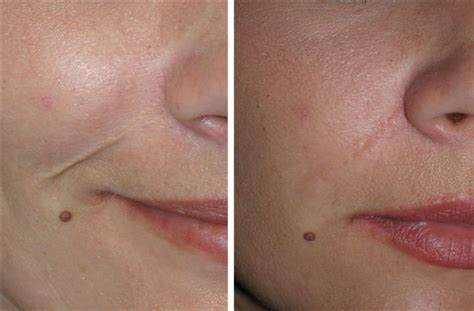 c section scar removal before and after facial scars and keloids gallery richmond va cosmetic