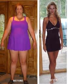 thinspiration vorher nachher becky s plastic surgery makeover after losing 150 pounds