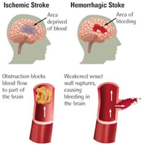 sintomi infarto sette segni per riconoscere un attacco ictus in breve