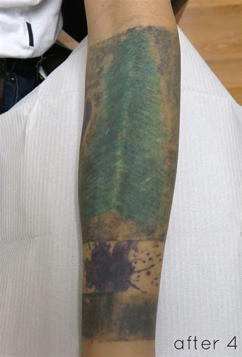 laser tattoo removal black green laser removal on solid black cover up