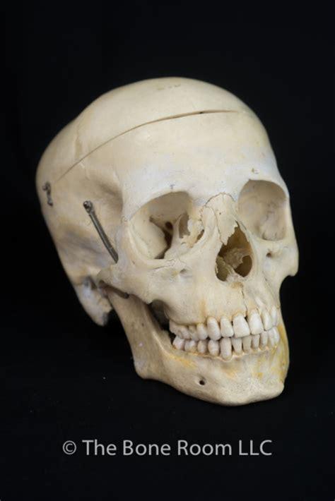 bone room we buy bones the bone room
