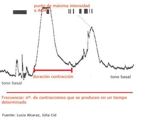 Q Causa Cytotec Al Feto Infermeravirtualcom Parto Situaciones De Vida Q Causa