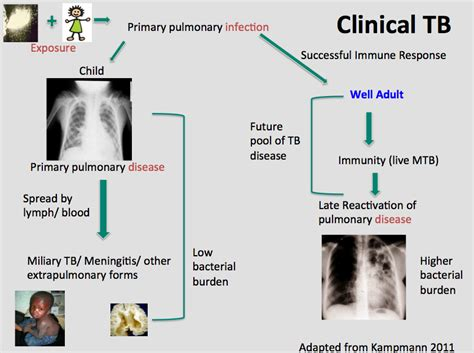 clinical overview childhood tuberculosis
