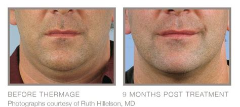 best cream for sagging jawline as we age phrases like turkey neck loose jowls