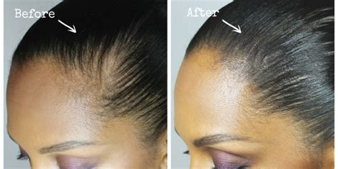 hair styles to cover bald spot on girls how to hide a bald spot melting pot beauty