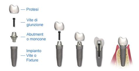 quanto costa una dentiera mobile quanto costa impiantare un dente all estero ed in italia