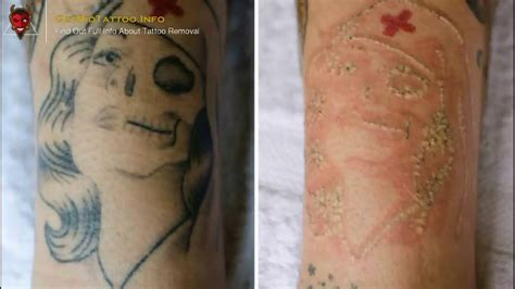 about tattoo removal saline removal everything you need to learn about