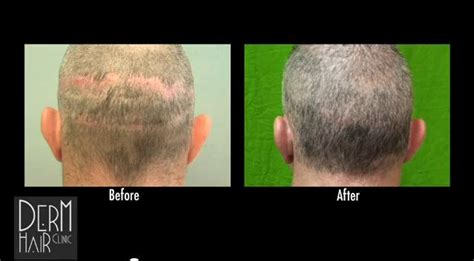 advances in hair cloning acell does not grow hair but may help wound healing