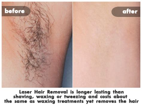 does laser hair removal hurt more than a tattoo laser hair removal costs st louis laser liposuction center