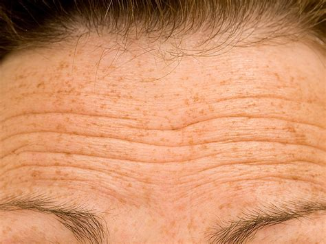 wrinkly forehead hair cold therapy freezes forehead wrinkles