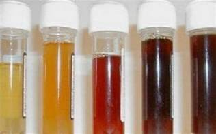 beets urine color what can the smell and color of my urine tell me about my