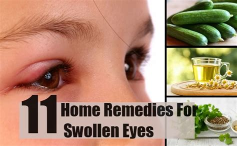 11 home remedies for swollen treatments