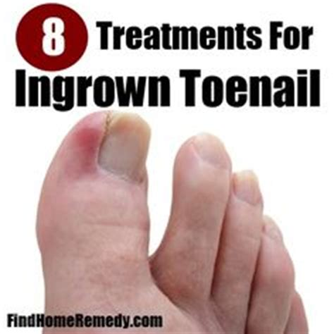 ingrown toenails on treatment for ingrown