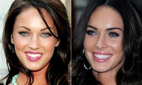 celebrity teeth    veneers traceybell