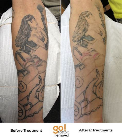 tattoo removal progress progress after 2 laser removal treatments on