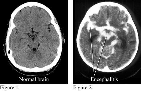 encephalitis in dogs encephalitis inflammation brain rasmussen