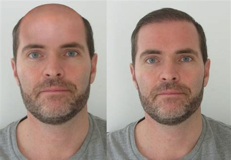 head shave before and after shaved head before after porno woman site