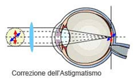 mal di testa e bruciore agli occhi astigmatismo cause e sintomi micro chirurgia oculare