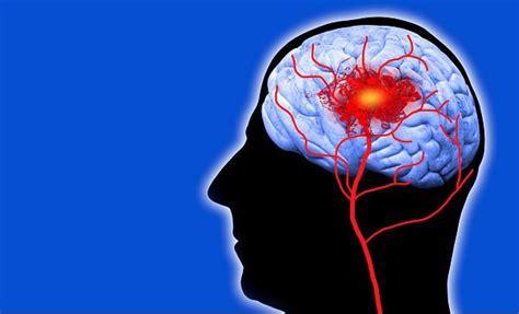 imagenes confusion mental s 237 ntomas de conmoci 243 n cerebral que toda persona debe