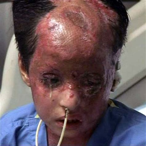 burn victim meaning israel is using chemical weapons now against palestine