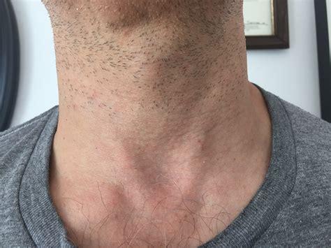 thyroid  surgery  fix  large symptomatic  ugly