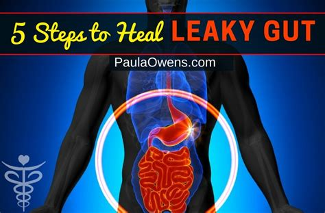 heal your gut the ultimate beginnerã s heal your leaky gut diet guide finally heal restore balance in your 50 nourishing repairing recipes books 5 step formula to heal leaky gut naturally paula owens