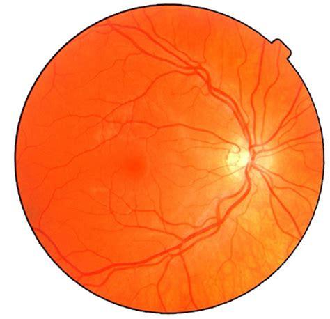fundus eye photo worldwide eye fundus photo database