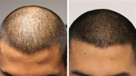 tattoo hair cost hair tattoo scalp micropigmentation