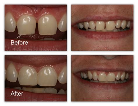 Mba After Dentistry by Front Teeth Bonding Before And After Dental Tooth