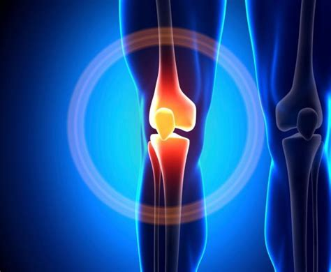 gonfiore interno ginocchio contusione ginocchio e dolore a scendere le scale
