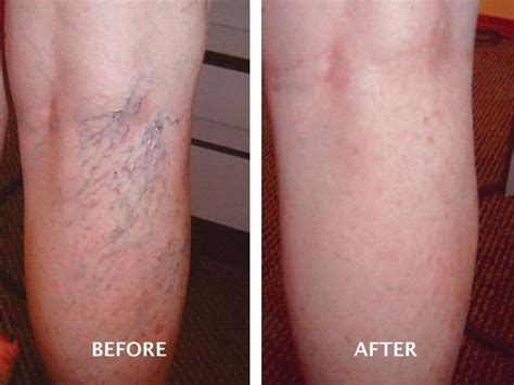 varicose vein treatment gallery advanced vein therapy