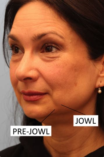 older woman with jowls what would be my best hairstyle take the depression out of your pre jowls plastic surgeon
