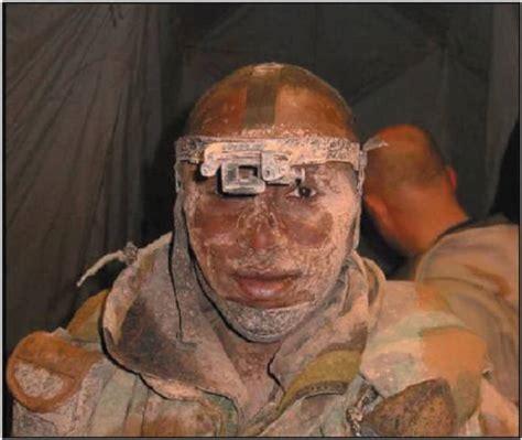 devastating photographs  show  true face  war