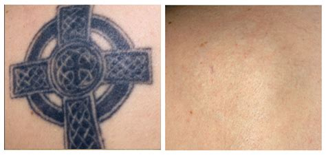 new york laser tattoo removal pictures of before and after removal inkerase