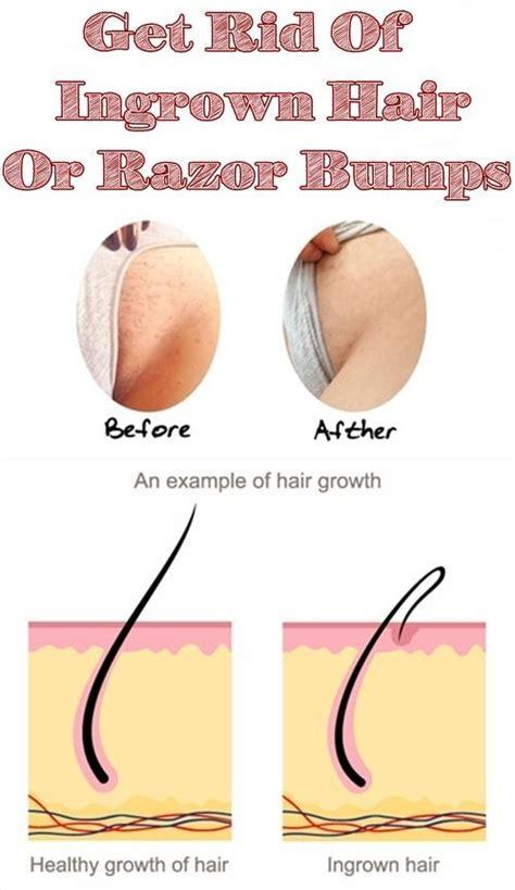 best shave for ingrown hairs om hair 46 best ingrown hair images on pinterest beauty hacks