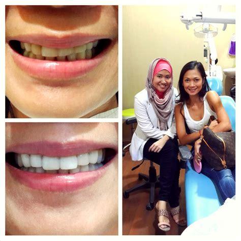 Pembersihan Karang Gigi Di Audy Dental Veneer Gigi Kelinci Di Audy Dental Best Seller Treatment