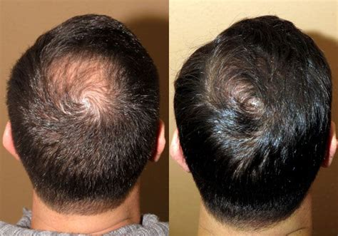hair transplants 1000 graft coverage 26 yo male concerned about crown hair coverage and