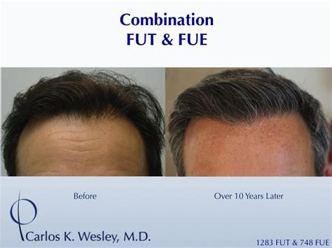 prescreened hair transplant physicians prescreened hair transplant physicians what is the