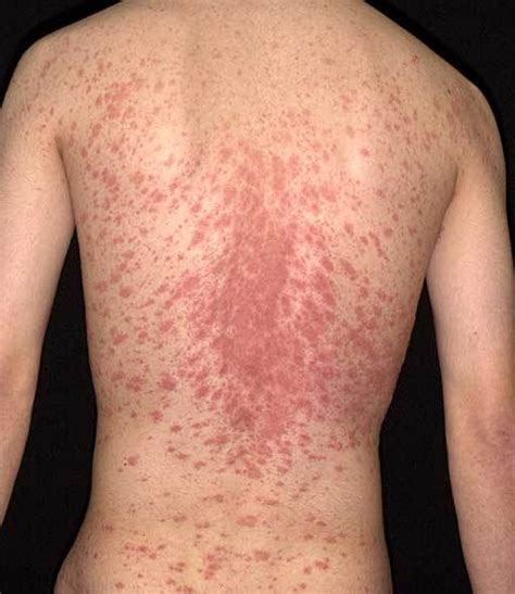 pityriasis rosea skin rash photos google search the