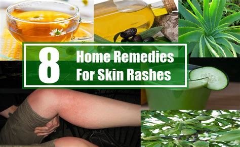 8 home remedies for skin rashes search home remedy