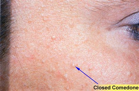 bumps formed bumps prescription acne