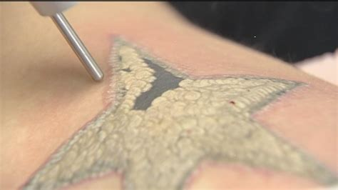 tattoo removal process guaranteed work tattoo removal the painful process explained abc13 com