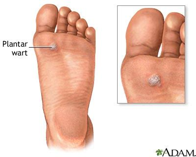 Planters Wart Symptoms by Plantar Foot Warts Verruca Plantaris Treatment Causes