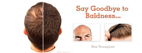 hair transplant training china forhair hair transplant in india for male female best doctors
