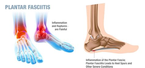 Planters Fasciitis Treatment by Plantar Fasciitis Treatment Plantarfasciitistreatments